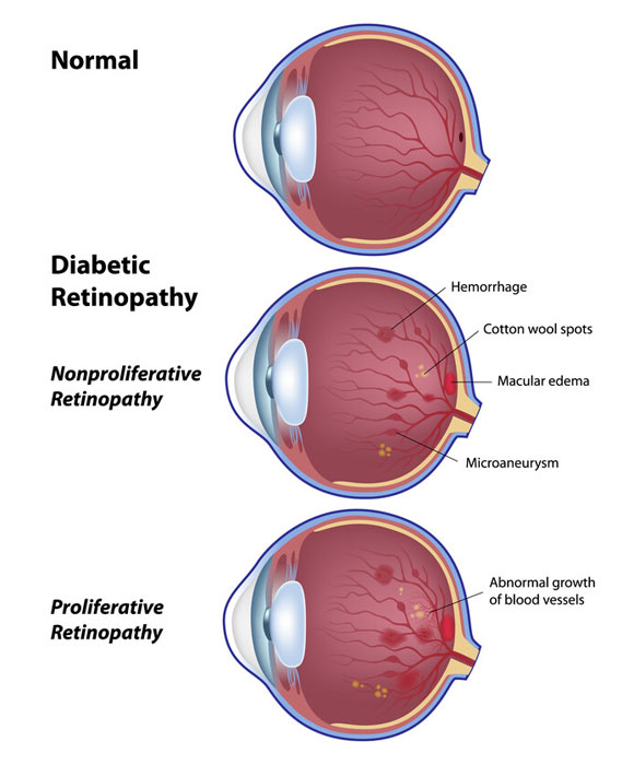 Diabetes-and-your-eyes